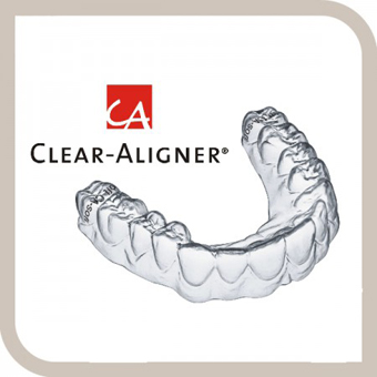 Clear Aligner