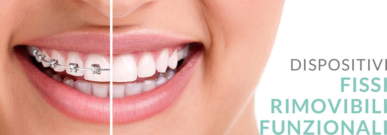 LOVe Ortodonzia